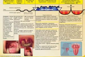 amigdalita-evolutie