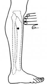 presopunctura-diaree