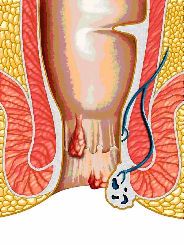 hemoroizi-externi-interni-tratamente-naturiste